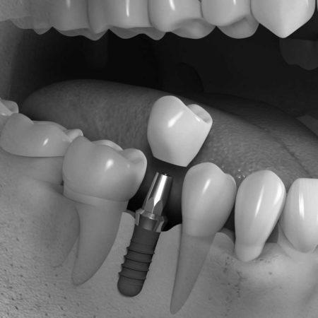 implantes04gris